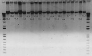 ejemplo de gel de electroforesis en gel de agarosa. Las concentraciones de las muestras se observan en microgramos/microlitro