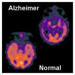 Comparación de cerebros con Alzheimer y sin Alzheimer